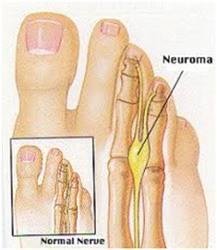 Nevrome morton pied